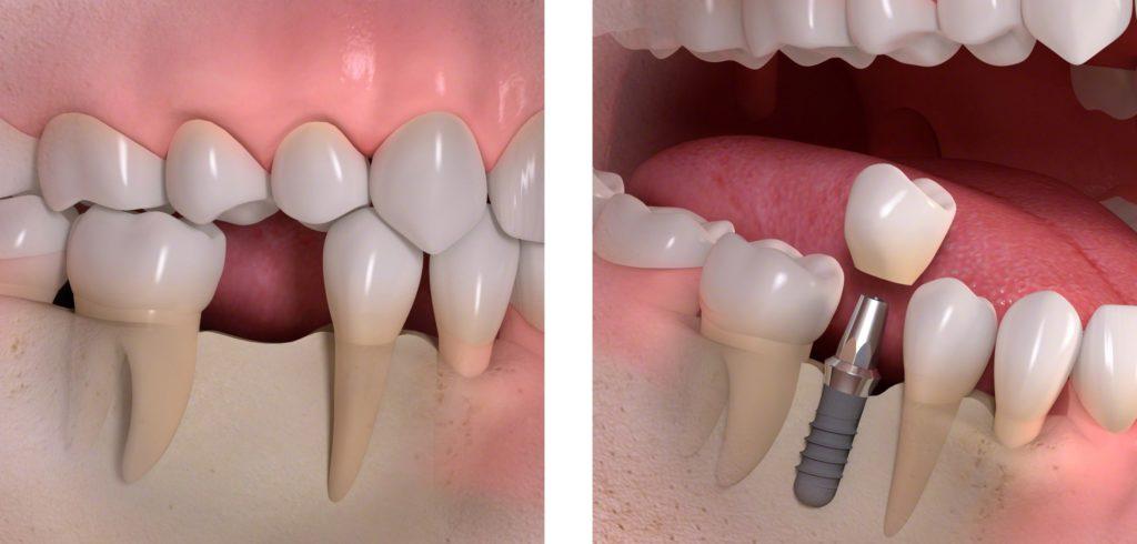 implantater tænder priser